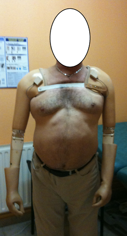 Fabrication de prothèse de bras Lens (62)