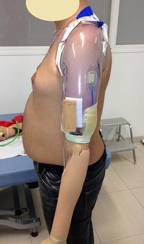 Fabrication de prothèse de bras Douai (59)
