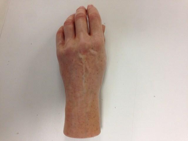 Fabrication prothèse de main esthétique Arras (62)