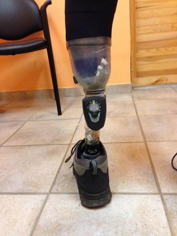 Fabrication prothèse tibiale La Bassée (62)